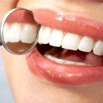 Začenja se enomesečna akcija Zdrave dlesni